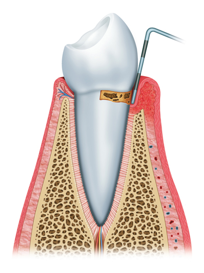Stages of Gum Disease Burnaby, BC