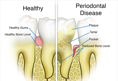 Gum Disease and Tooth and Bone Loss Burnaby, BC